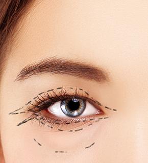 Plástica Ocular