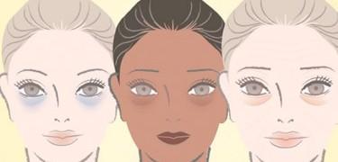 Como identificar os tipos de olheiras e como tratá-las