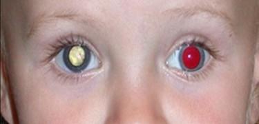 Teste do olhinho: essencial para todos os bebês