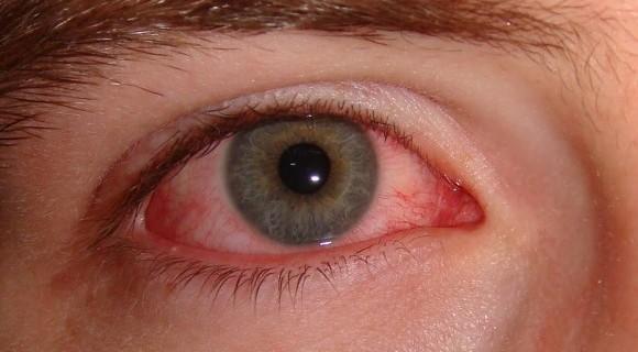 Nem todo olho vermelho é sintoma de conjuntivite